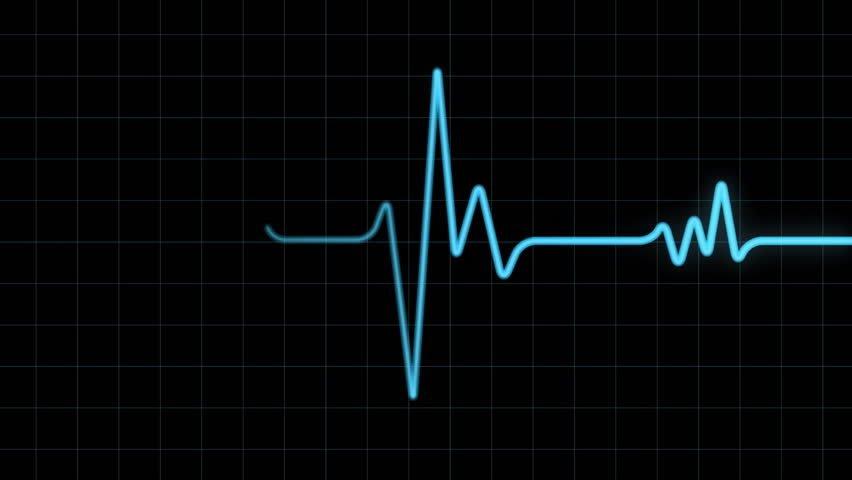 heart-monitor-blips